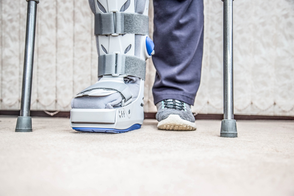 Sprained Your Knee The Cost Of A Brace Could Sprain Your